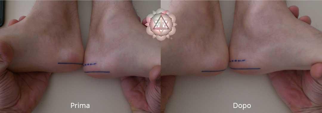 Foto prima e dopo il Riallineamento Spirituale secondo Pjotr Elkunoviz